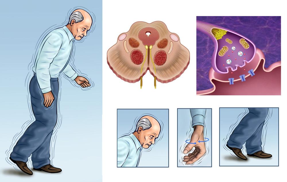 болезнь паркинсона реабилитация